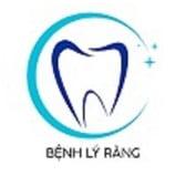 Benh ly  Rang